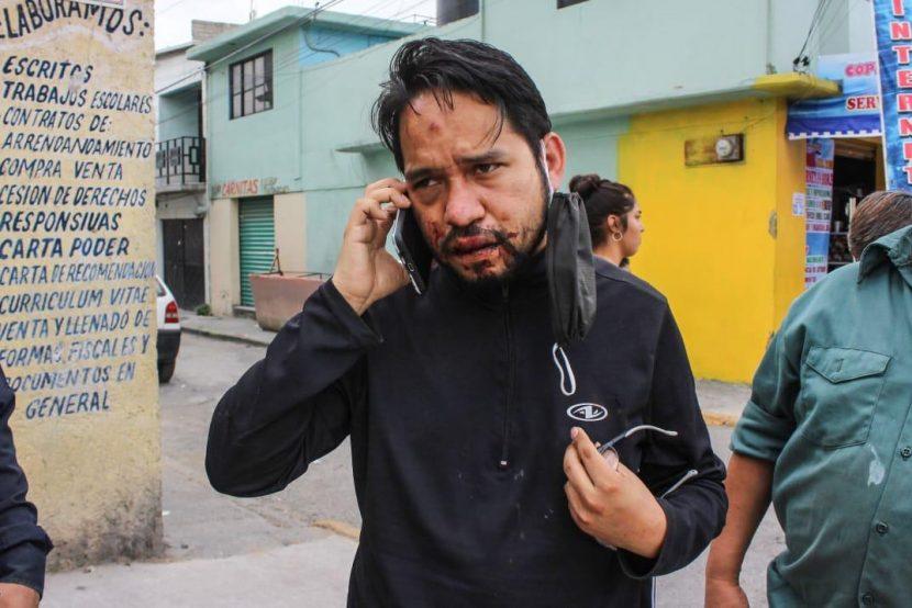 PERIODISTA GOLPEADO Y GOBIERNO DE ECATEPEC ACUERDAN DEJAR EL HECHO SIN EFECTOS LEGALES